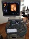 3D/4D-Ultraschall